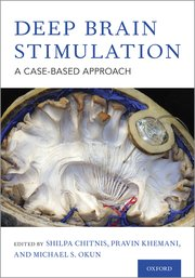 Cover for   Deep Brain Stimulation
