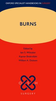 Cover for   Burns