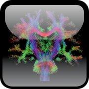 Cover for Diffusion MRI