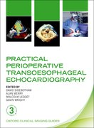 Cover for Practical Perioperative Transoesophageal Echocardiography